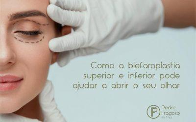 Como a blefaroplastia superior e inferior pode ajudar a abrir o seu olhar