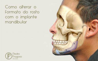 Como alterar o formato do rosto com o implante mandibular