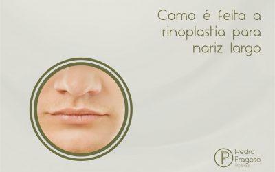 Como é feita a rinoplastia para nariz largo