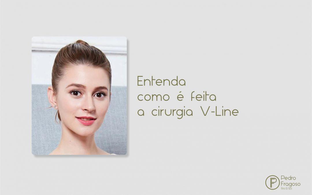 Entenda como é feita a cirurgia V-Line
